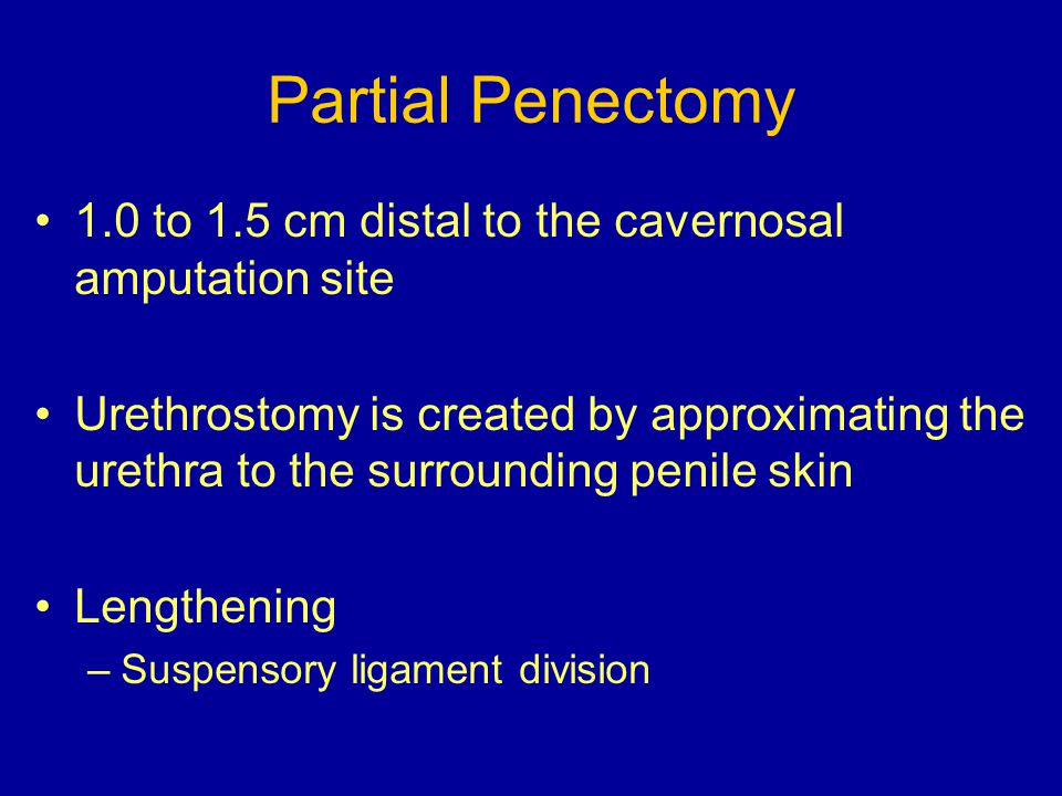 Partial Penectomy 1.0 to 1.5 cm distal to the cavernosal amputation site.