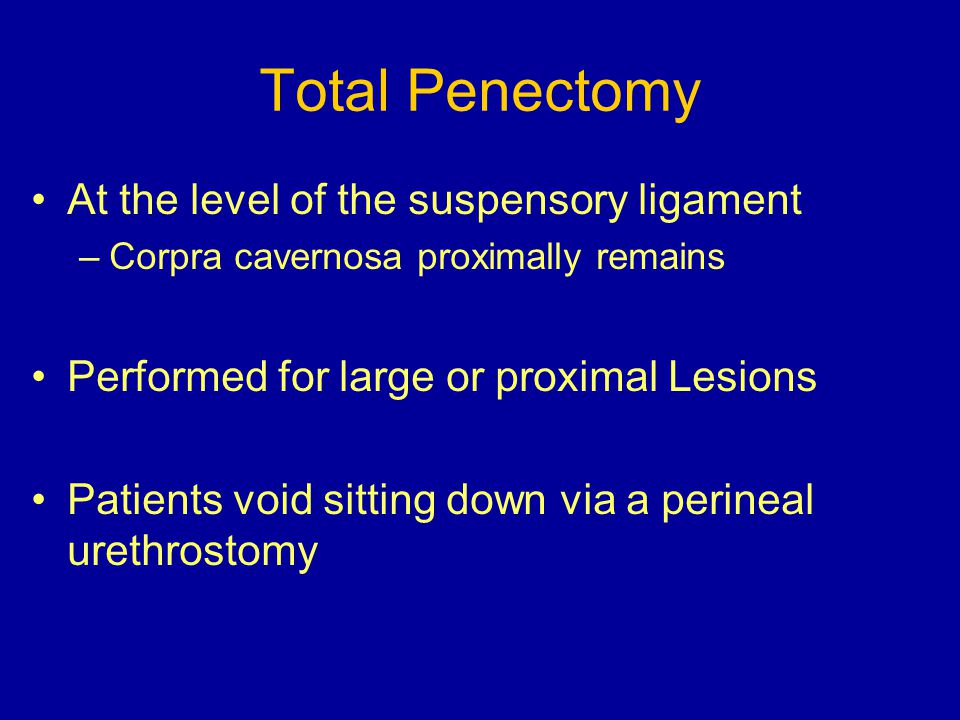 Total Penectomy At the level of the suspensory ligament