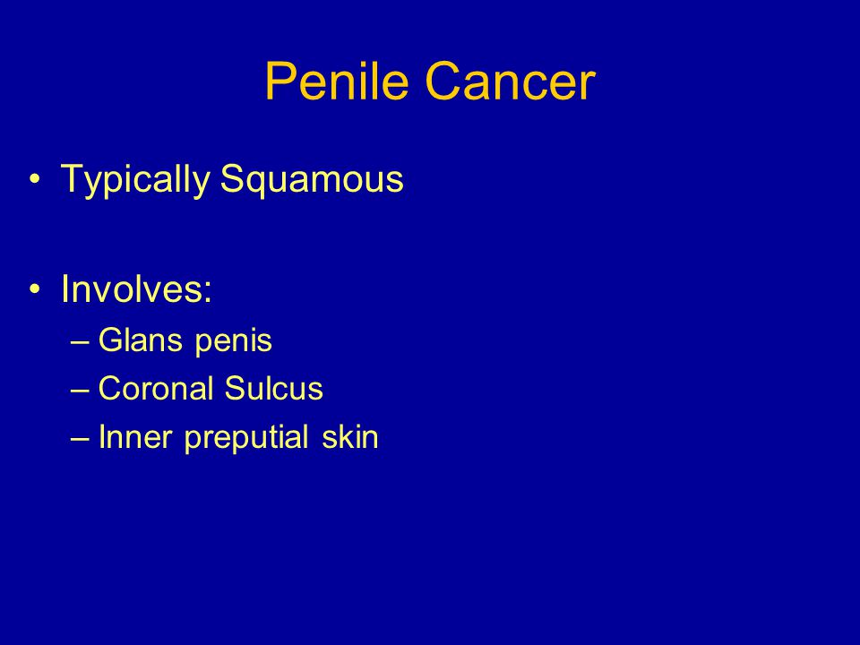 Penile Cancer Typically Squamous Involves: Glans penis Coronal Sulcus