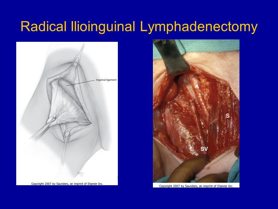 Radical Ilioinguinal Lymphadenectomy