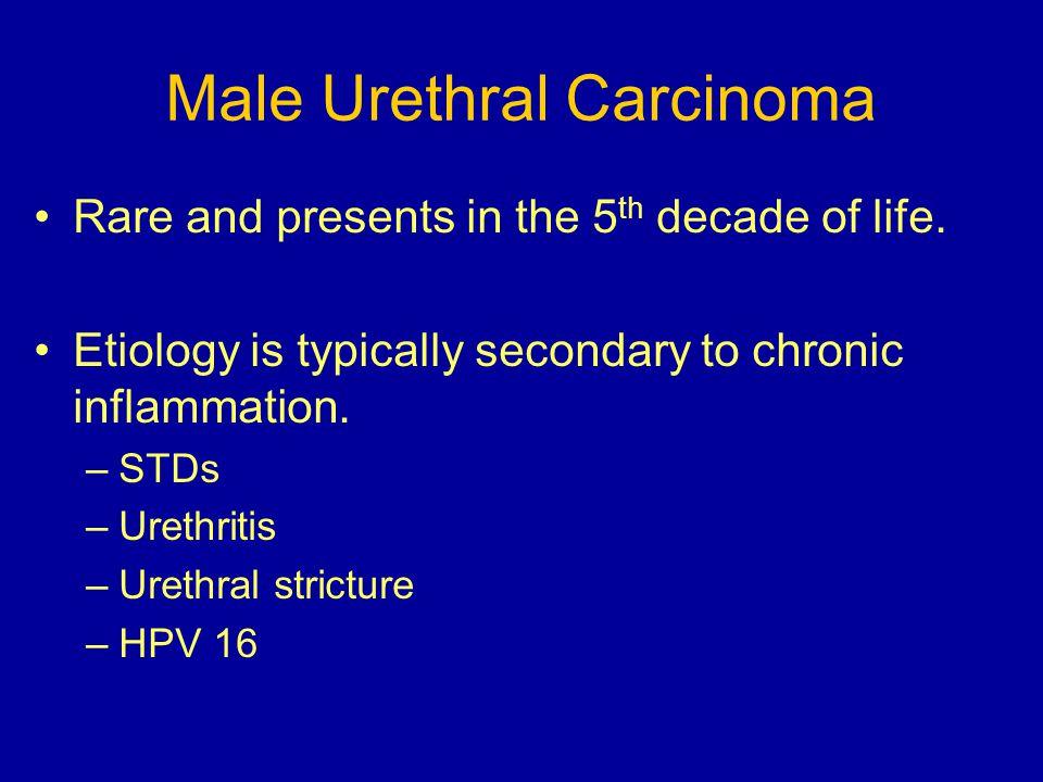 Male Urethral Carcinoma