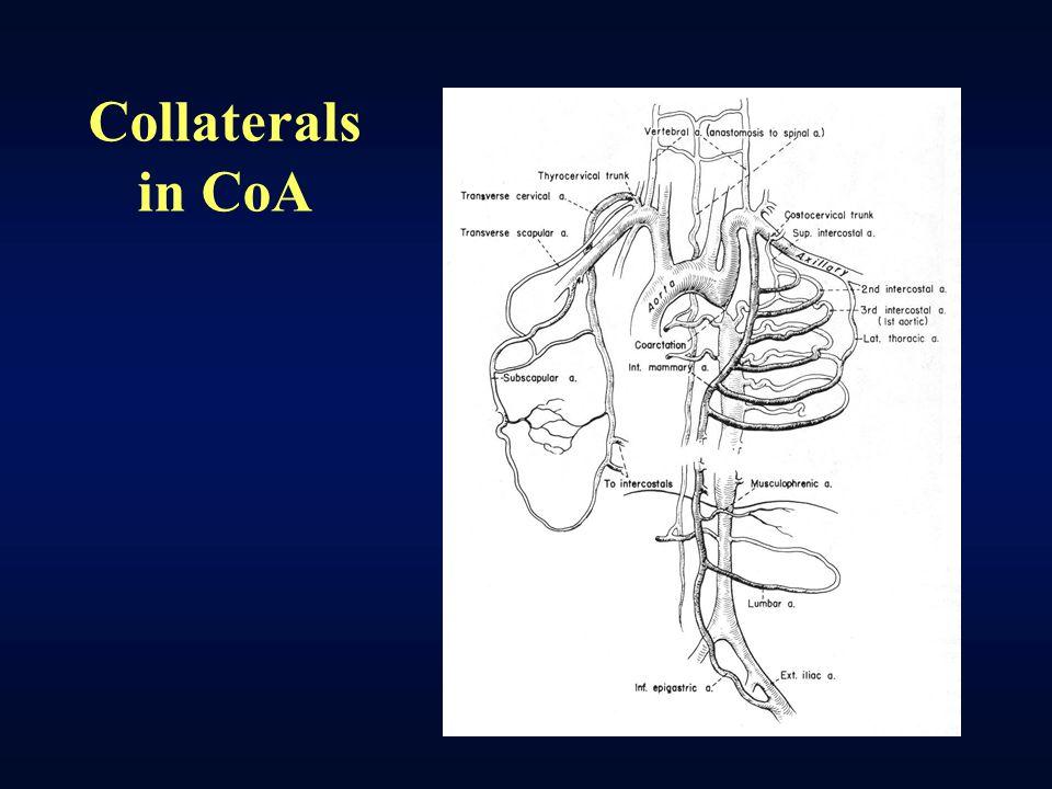 Collaterals in CoA