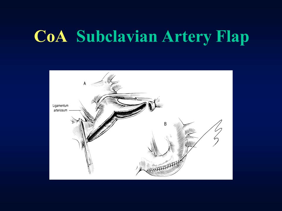 CoA Subclavian Artery Flap