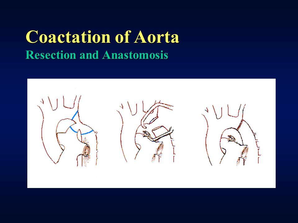Coactation of Aorta Resection and Anastomosis