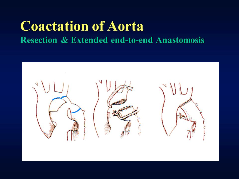 Coactation of Aorta Resection & Extended end-to-end Anastomosis