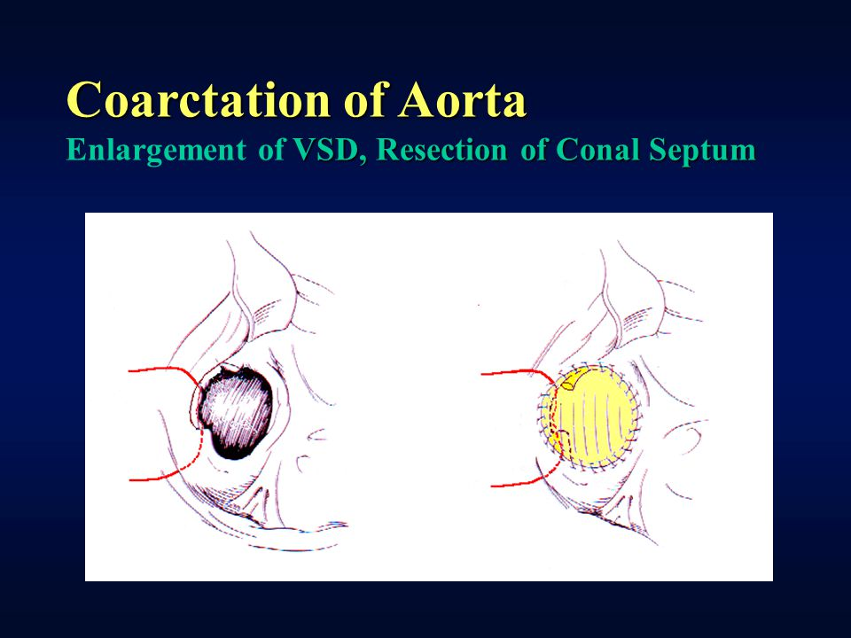 Coarctation of Aorta Enlargement of VSD, Resection of Conal Septum