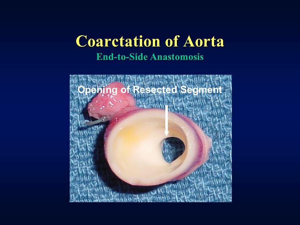 Coarctation of Aorta End-to-Side Anastomosis