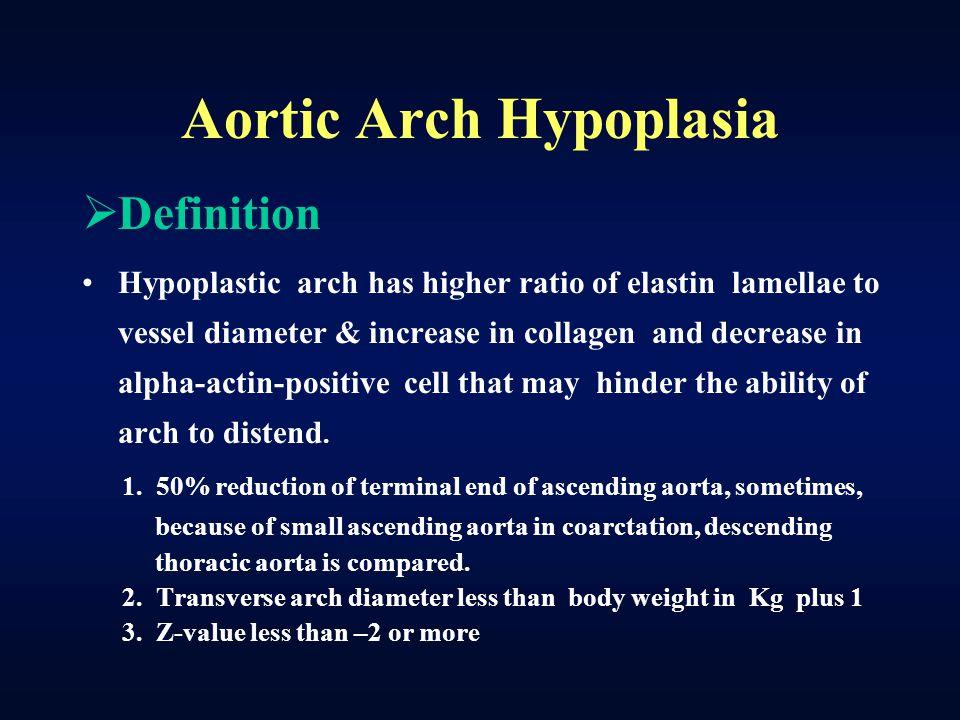 Aortic Arch Hypoplasia