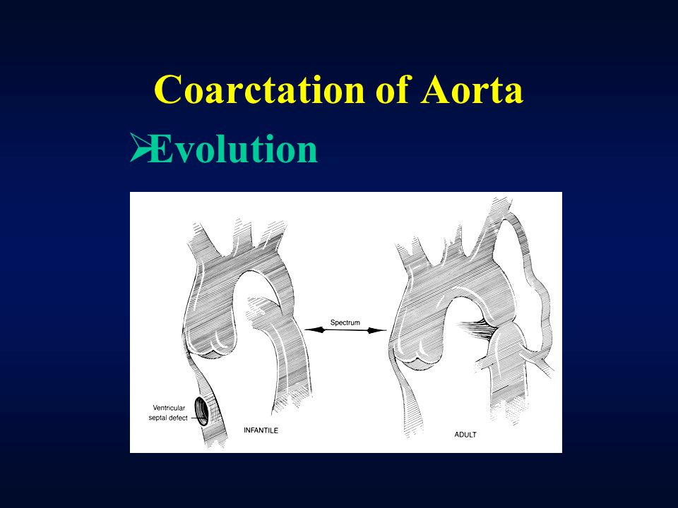 Coarctation of Aorta Evolution