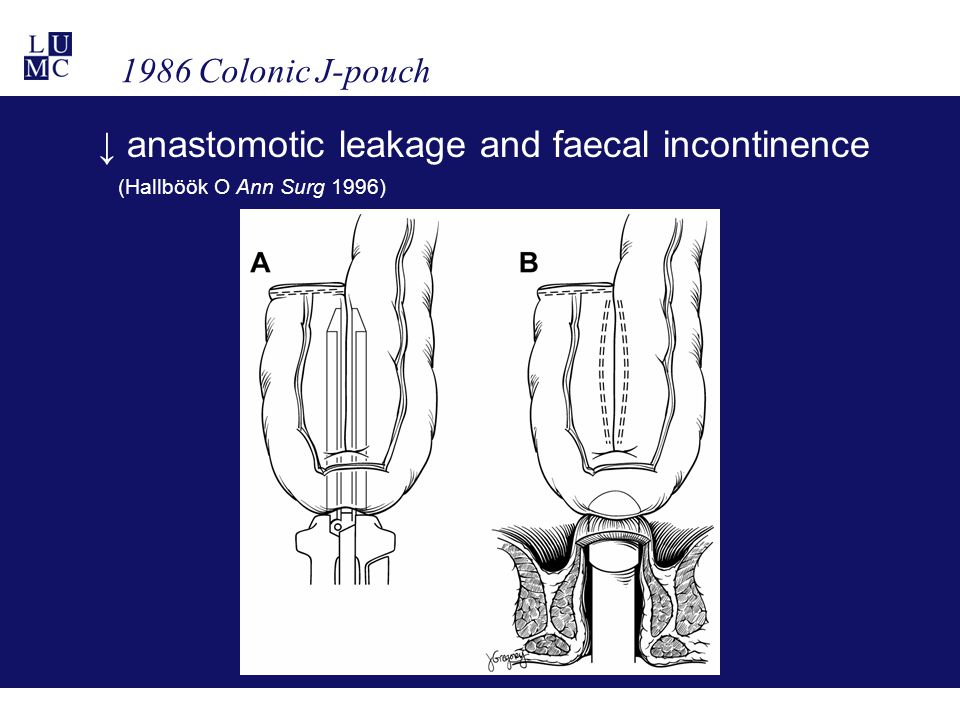 1986 Colonic J-pouch ↓ anastomotic leakage and faecal incontinence (Hallböök O Ann Surg 1996)
