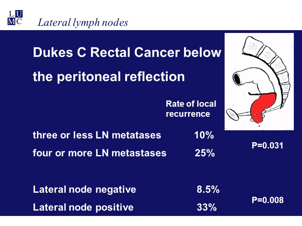 Dukes C Rectal Cancer below the peritoneal reflection