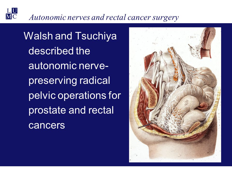 Autonomic nerves and rectal cancer surgery