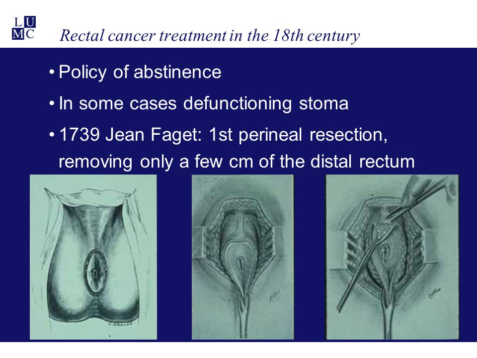 Rectal cancer treatment in the 18th century