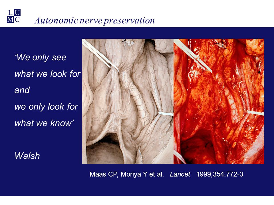 Autonomic nerve preservation