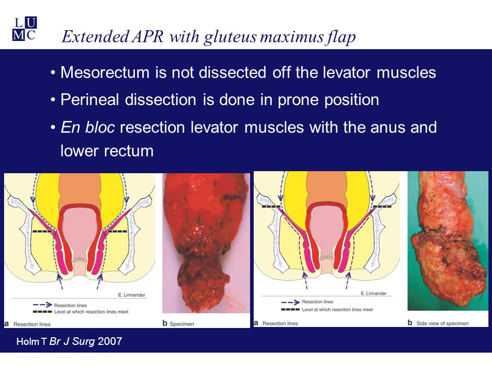 Extended APR with gluteus maximus flap