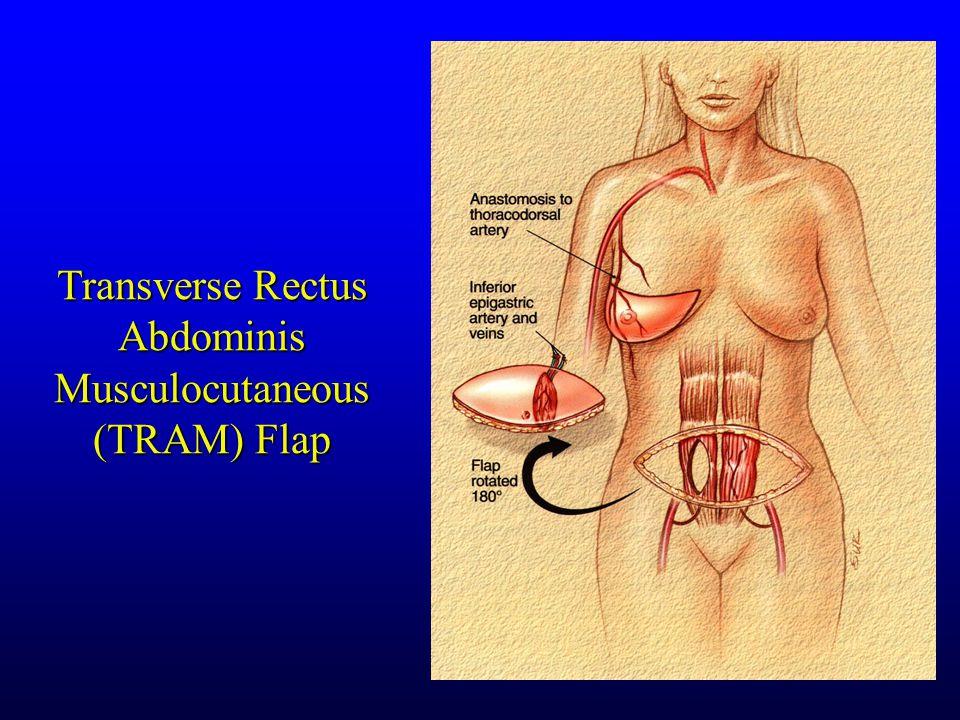 Transverse Rectus Abdominis Musculocutaneous