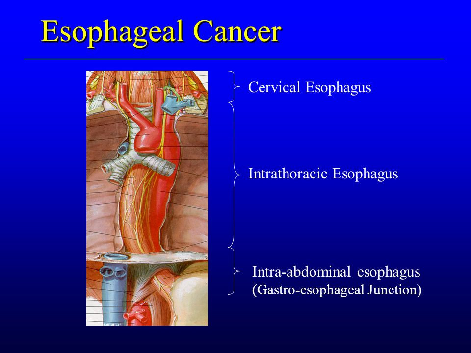 Esophageal Cancer Cervical Esophagus Intrathoracic Esophagus