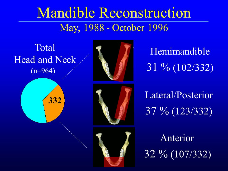 Mandible Reconstruction May, 1988 - October 1996