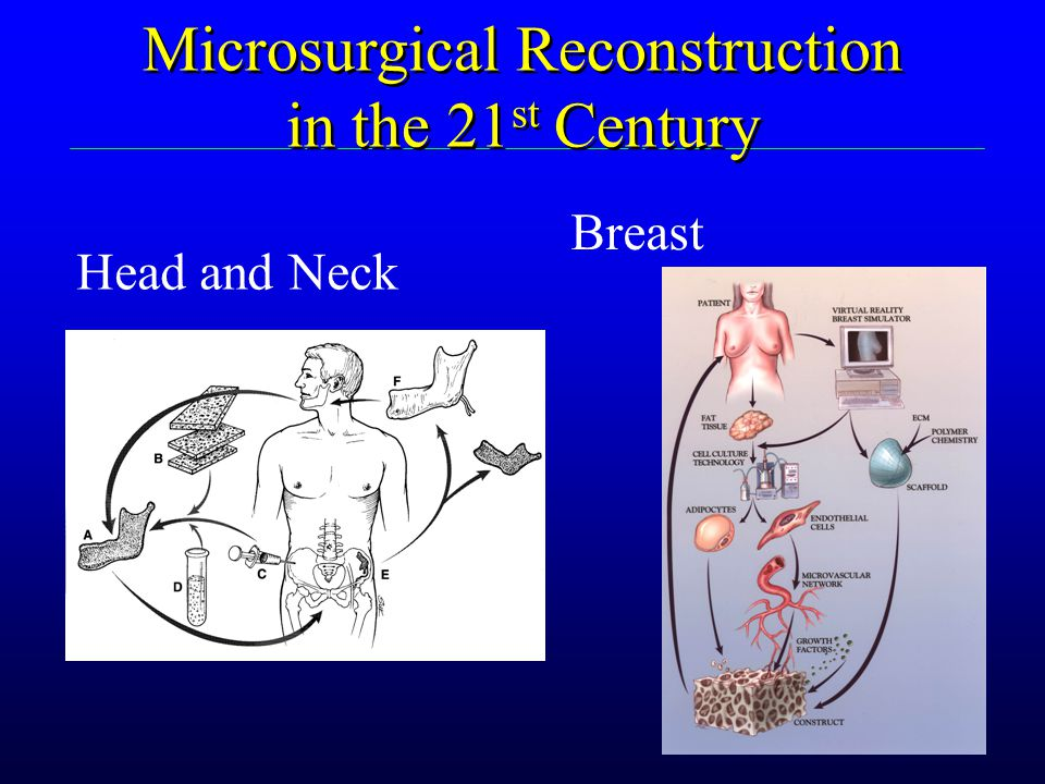 Microsurgical Reconstruction