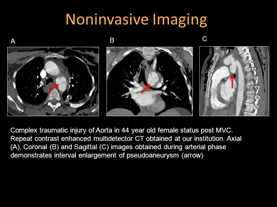 Noninvasive Imaging C B A