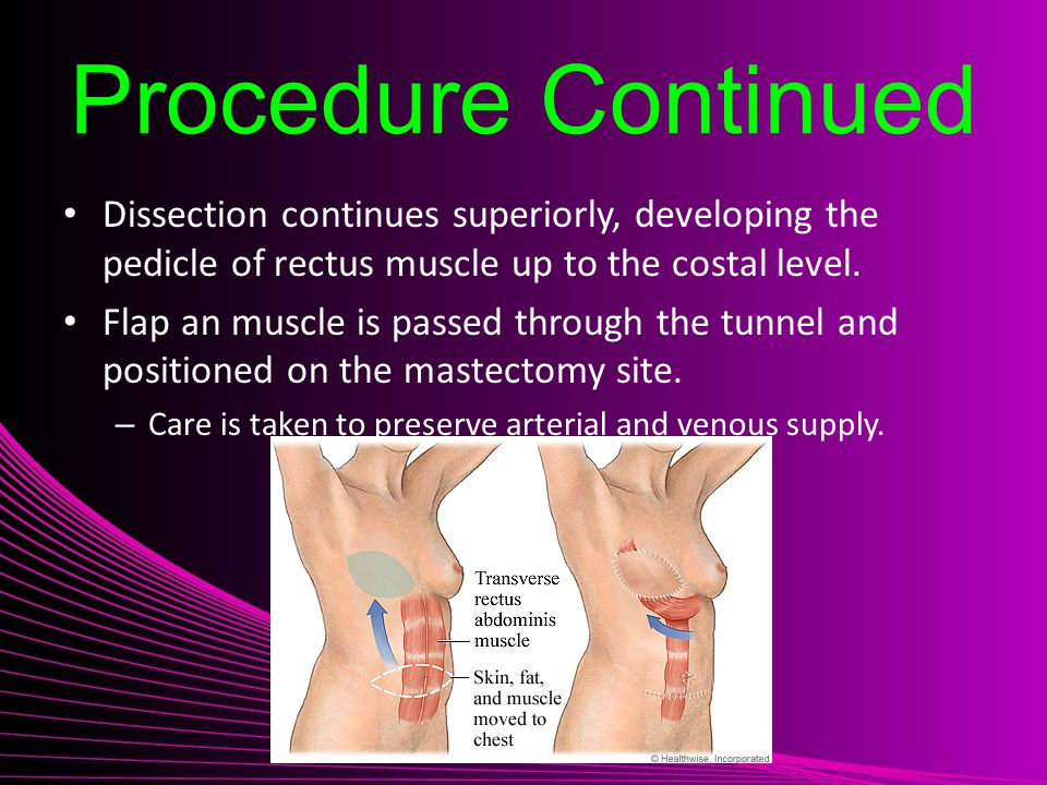 Procedure Continued Dissection continues superiorly, developing the pedicle of rectus muscle up to the costal level.