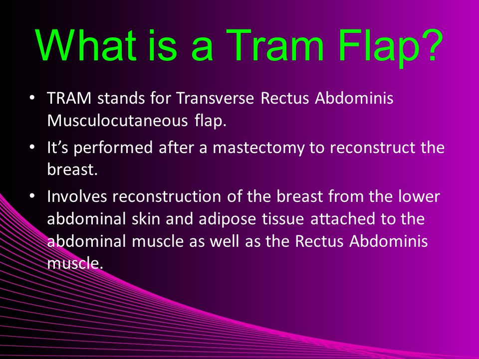 What is a Tram Flap TRAM stands for Transverse Rectus Abdominis Musculocutaneous flap. It's performed after a mastectomy to reconstruct the breast.