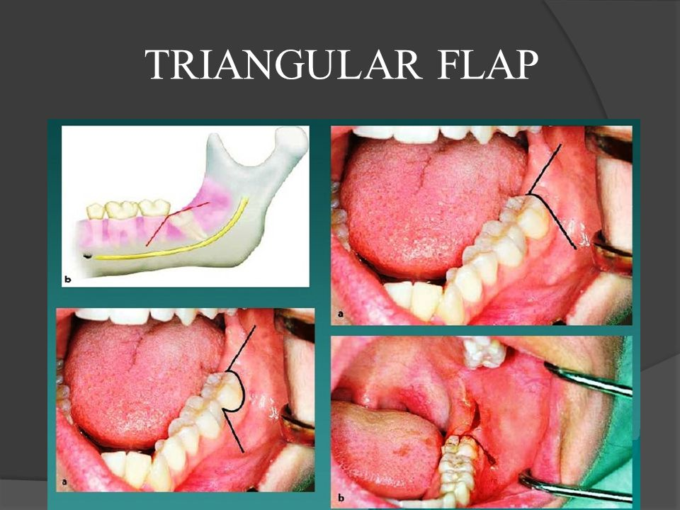TRIANGULAR FLAP