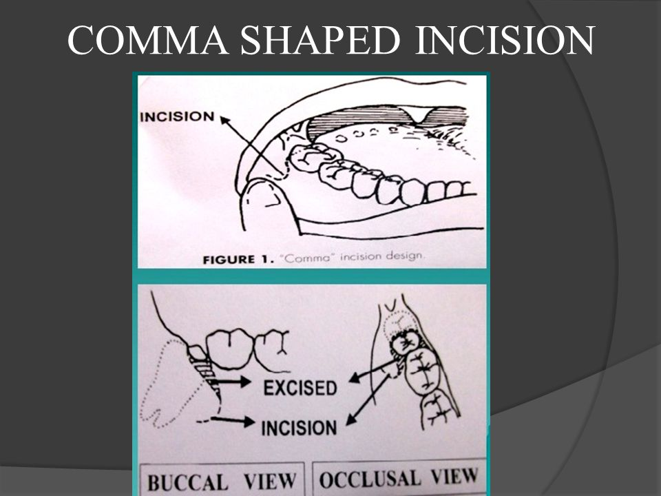 COMMA SHAPED INCISION