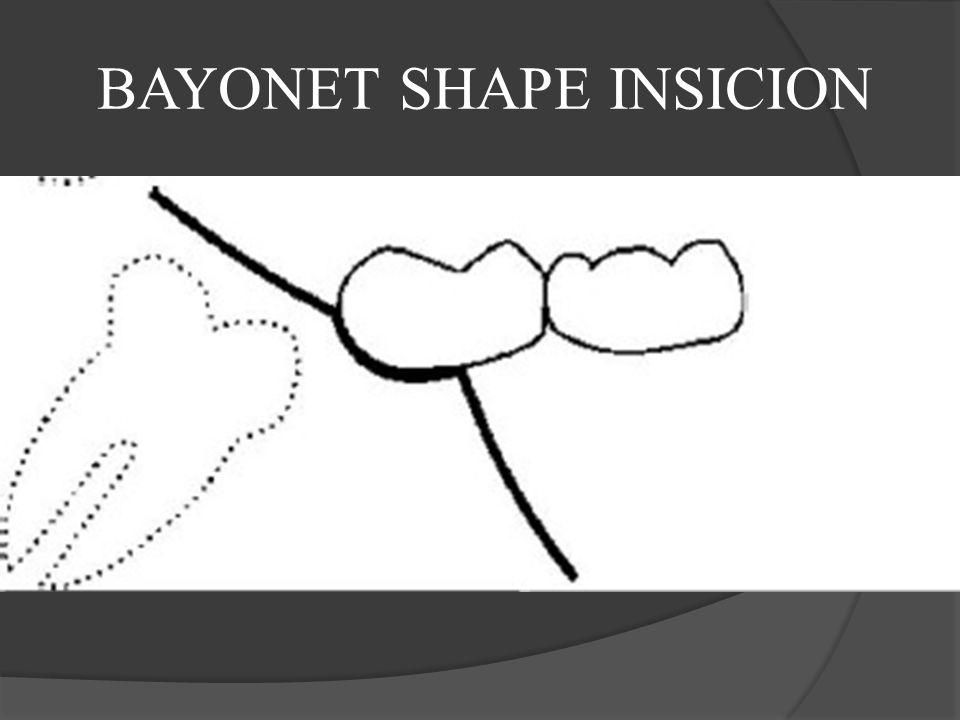 BAYONET SHAPE INSICION