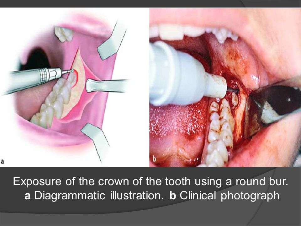 Exposure of the crown of the tooth using a round bur.