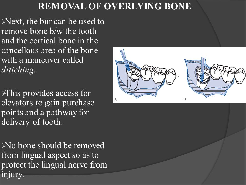 REMOVAL OF OVERLYING BONE