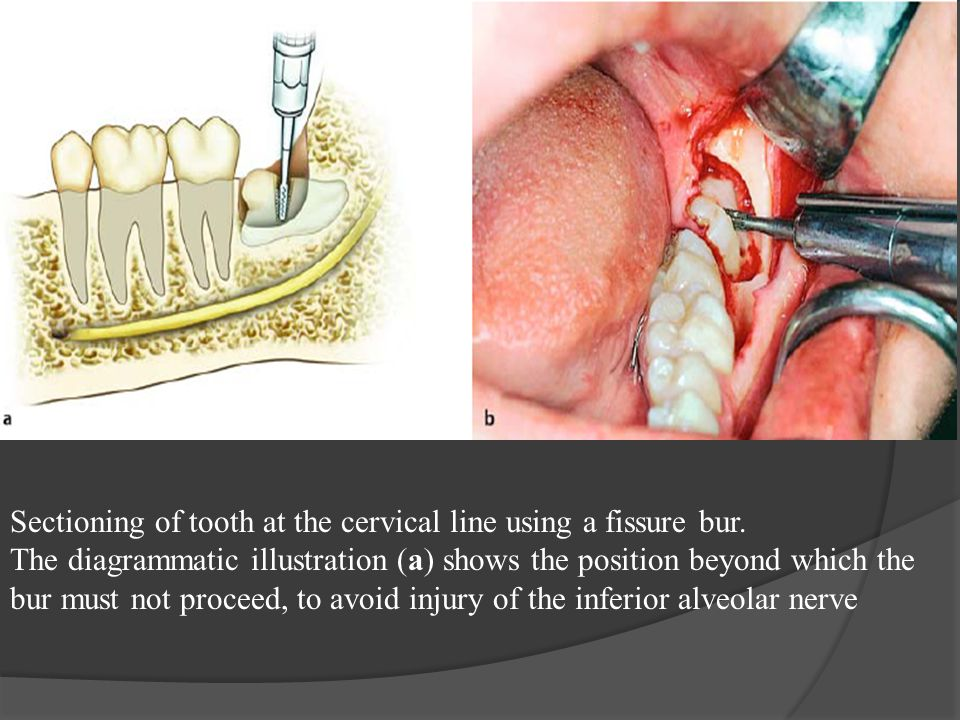 Sectioning of tooth at the cervical line using a fissure bur.