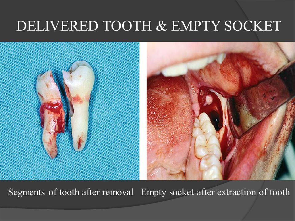 DELIVERED TOOTH & EMPTY SOCKET