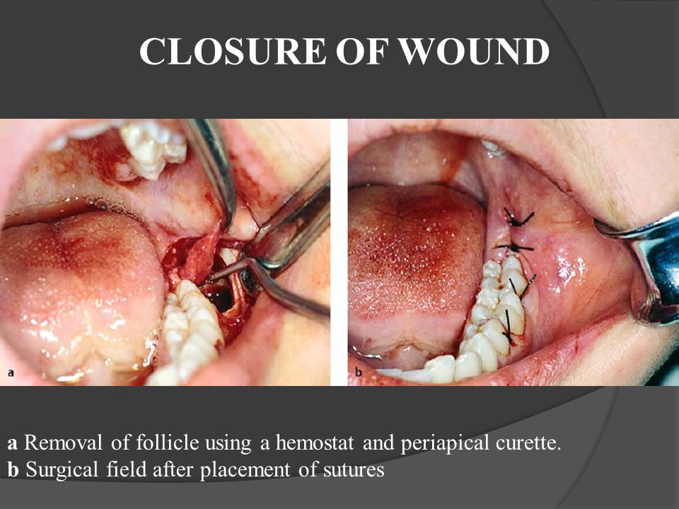 CLOSURE OF WOUND a Removal of follicle using a hemostat and periapical curette.