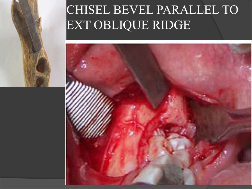 CHISEL BEVEL PARALLEL TO EXT OBLIQUE RIDGE