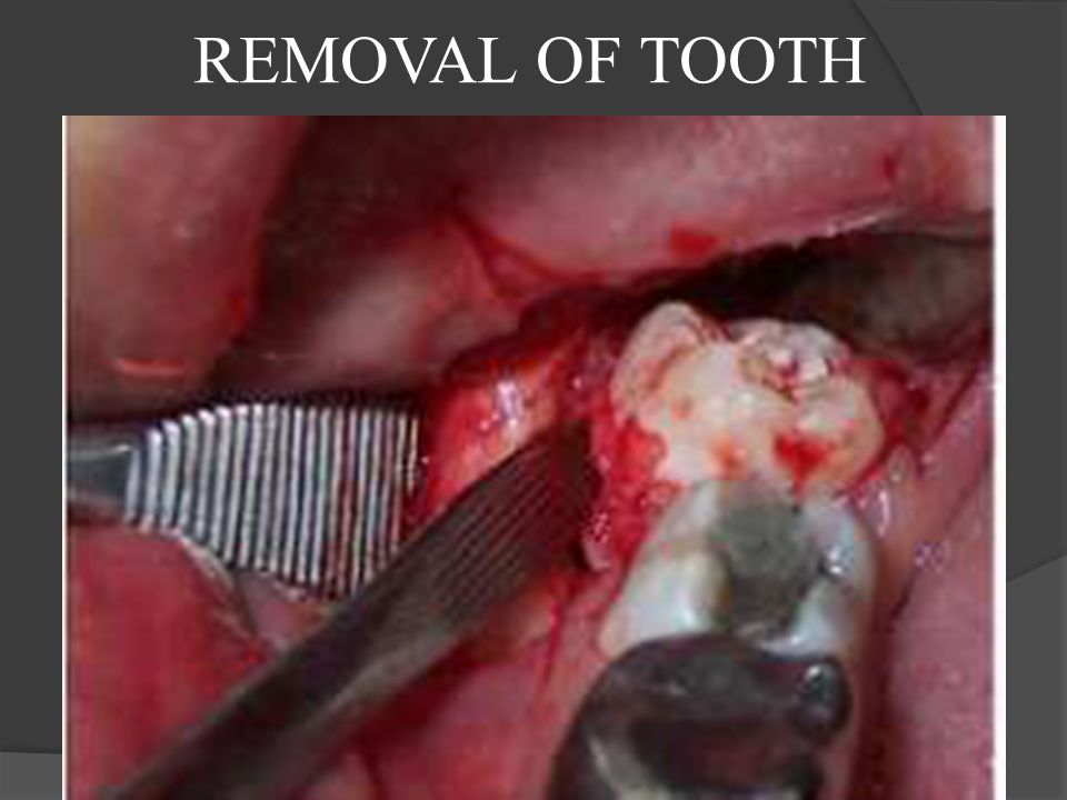 REMOVAL OF TOOTH
