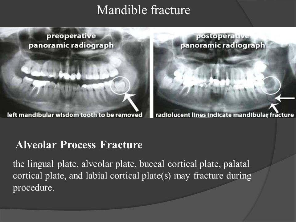 Mandible fracture Alveolar Process Fracture