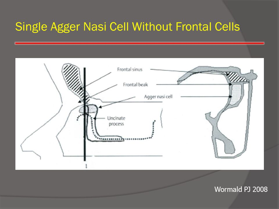 Single Agger Nasi Cell Without Frontal Cells