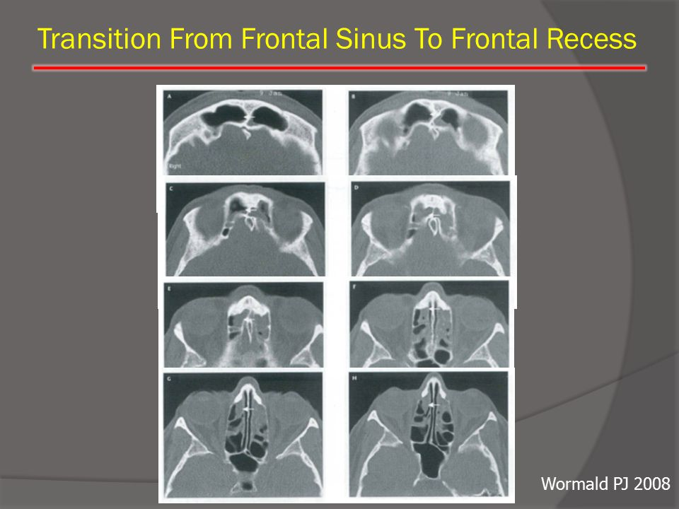 Transition From Frontal Sinus To Frontal Recess