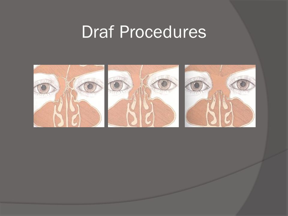 Draf Procedures