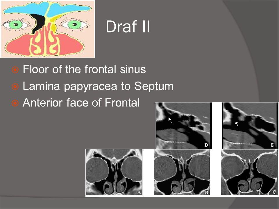 Draf II Floor of the frontal sinus Lamina papyracea to Septum