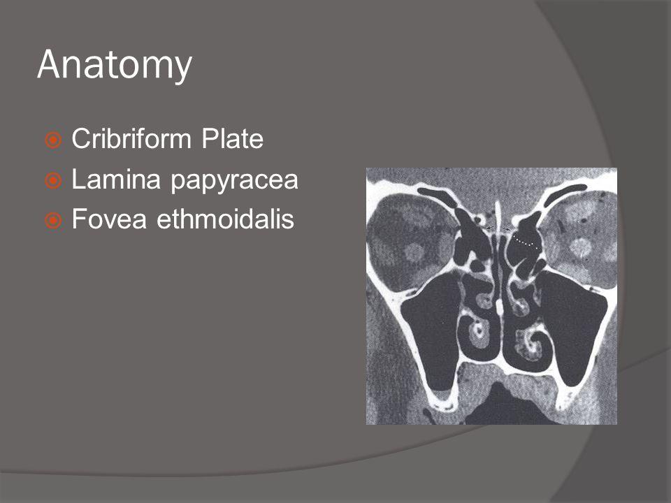 Anatomy Cribriform Plate Lamina papyracea Fovea ethmoidalis