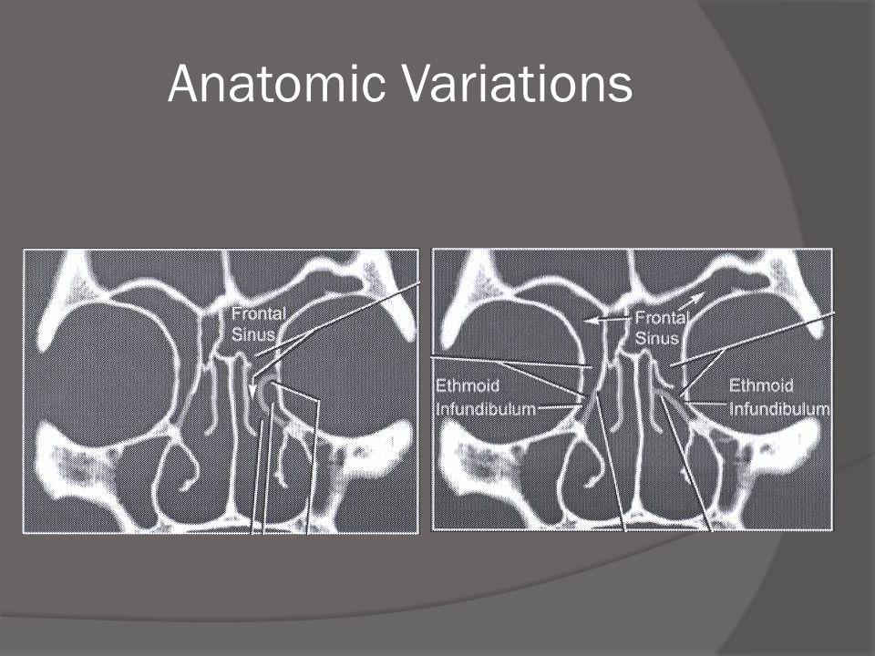 Anatomic Variations