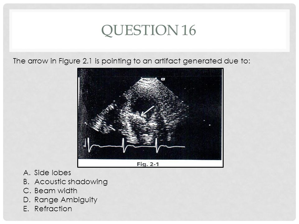Question 16 The arrow in Figure 2.1 is pointing to an artifact generated due to: Side lobes. Acoustic shadowing.