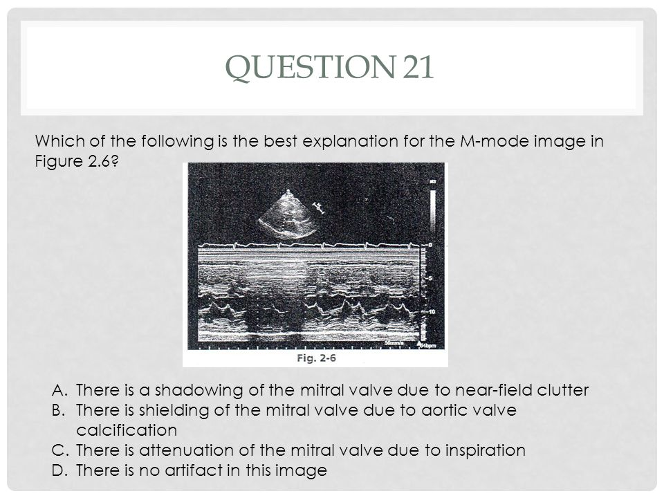 Question 21 Which of the following is the best explanation for the M-mode image in Figure 2.6