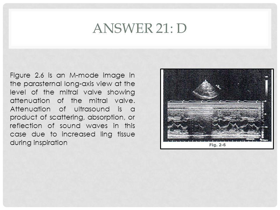 Answer 21: d