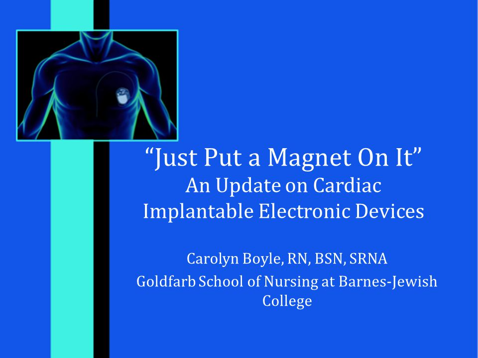 Just Put a Magnet On It An Update on Cardiac Implantable Electronic Devices