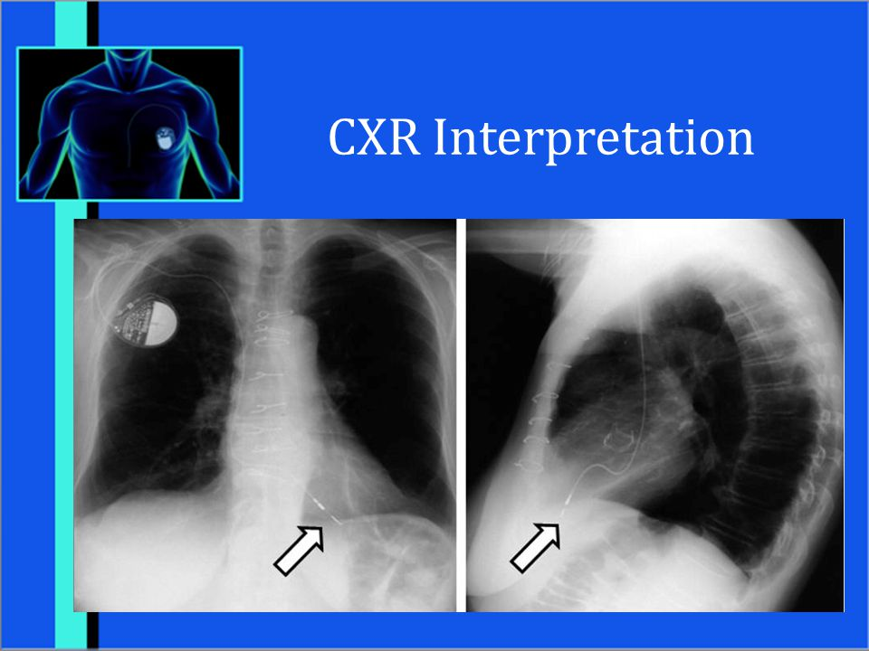 CXR Interpretation Female patient with single lead ventricular pacemaker – tip in the apex of the RV.
