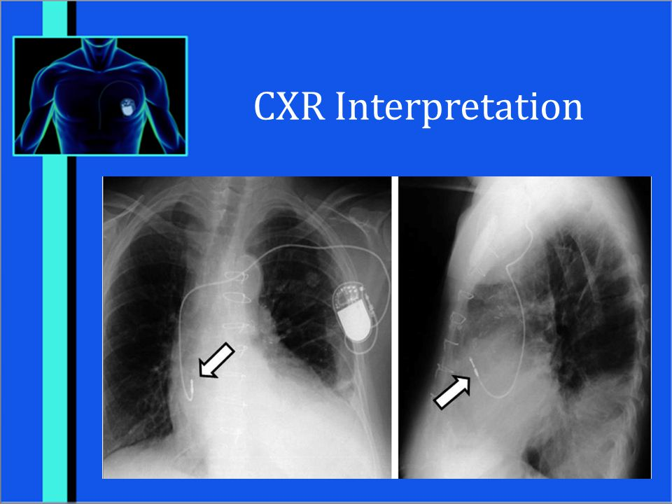 CXR Interpretation Female patient with single lead atrial pacemaker (tip in right atrial appendage)