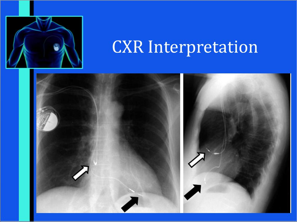 CXR Interpretation Female with two lead pacemaker with leads in RA and RV